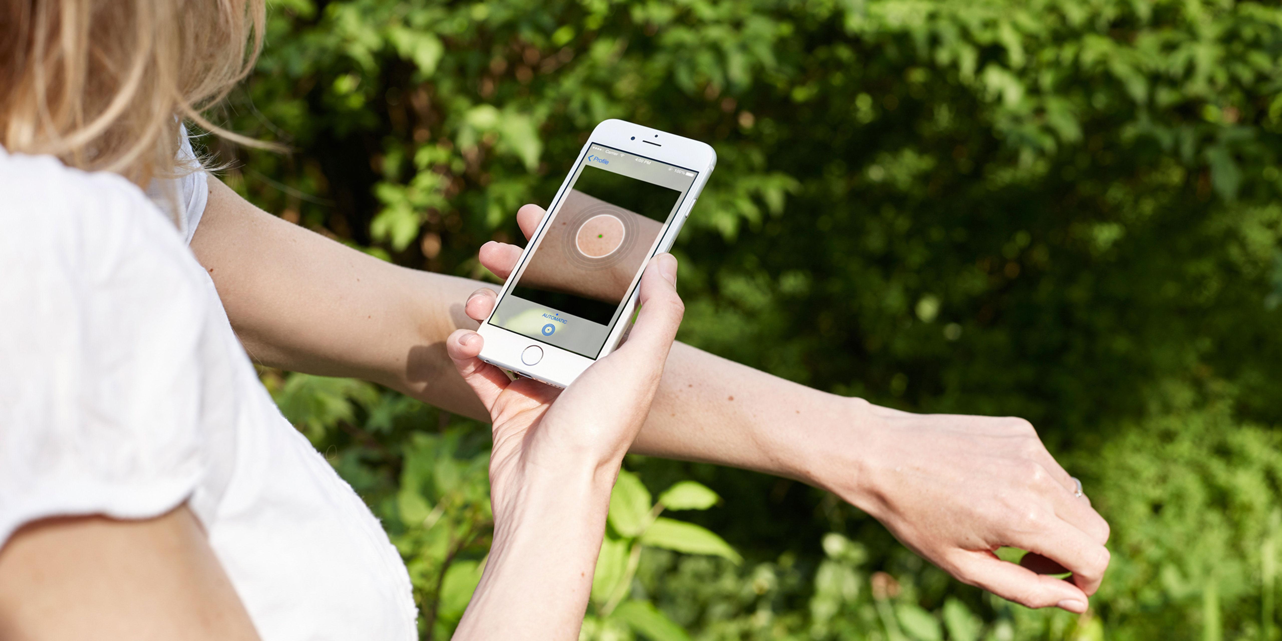 deep learning identify skin cancer