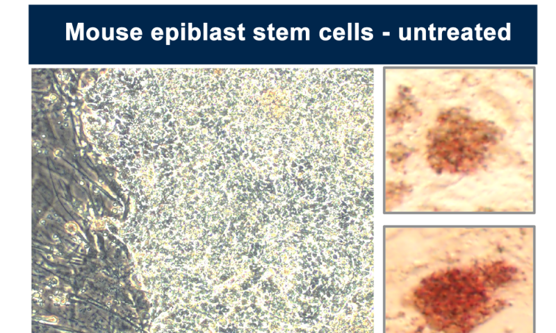 Eraser Drug Makes Stem Cells Embryonic Again