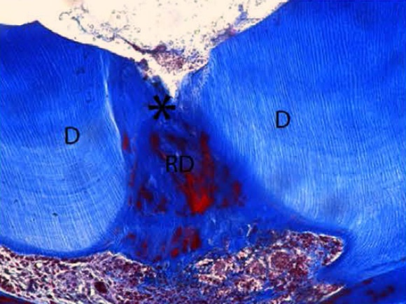 natural tooth repair alzheimer's drug