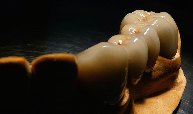 lab teeth