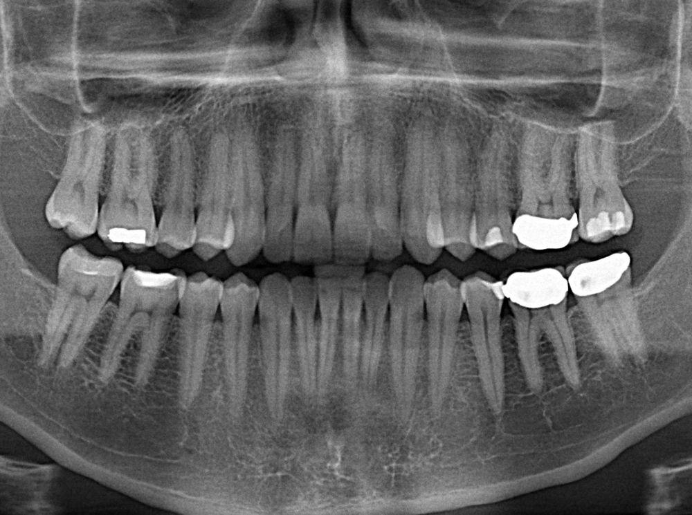 Regenerative Tooth Fillings